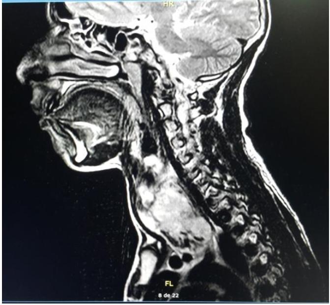 Imagen de Resonancia del Sarcoma de Tiroides en una paciente pediátrico